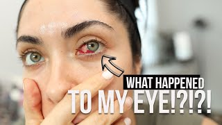 About my pterygium surgery...| surfer's eye | Melissa Alatorre