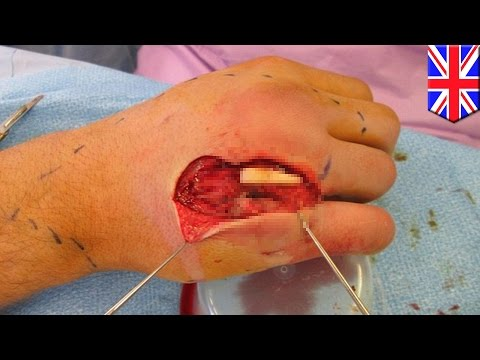 Usunąć guz na kciuku nóg laserowych