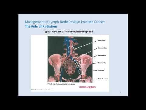 Powerpoint cancer de colon