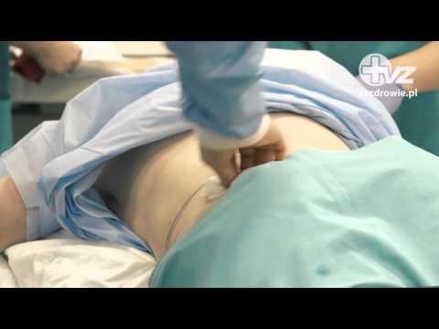 Powiększenie piersi w Charkowie