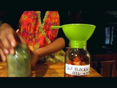 Na kung saan ay mabuti na gumamit ng shampoo para sa buhok pagkawala
