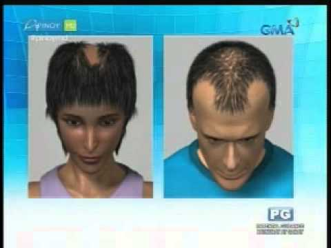 Male pattern baldness at sibuyas review