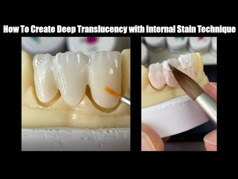 How To Create Deep Translucency with Internal Stain Technique