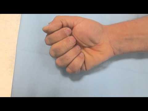 Aiuta a blocchi di ernia intervertebrale