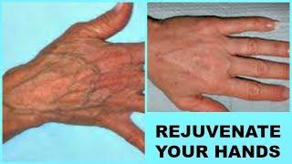 hand varicose de mână exerciții de la wallpapers varicose