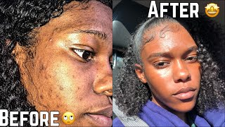 SKIN | How To Get Rid Of Hyperpigmentation (Dark spots) less than a month | FAST!!!