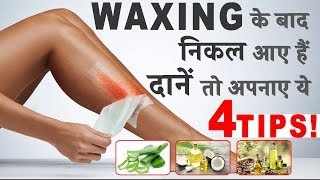 4 Things You Should Use After Waxing to Prevent Rashes !
