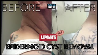 TBT: Cyst excision on Upper back with overlying tattoo:  An update