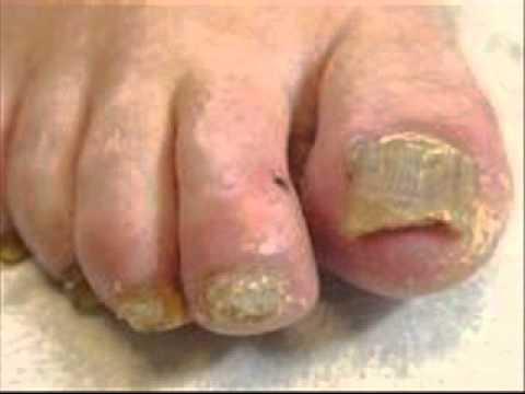 Fungus toenails gulang