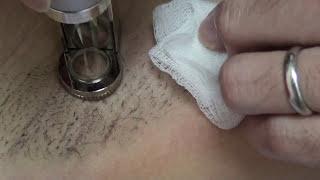 激光脫毛 - 鍾經略醫生 (part 1) laser hair removal