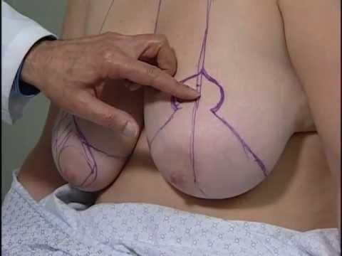 Contraceptive para sa dibdib pagpapalaki