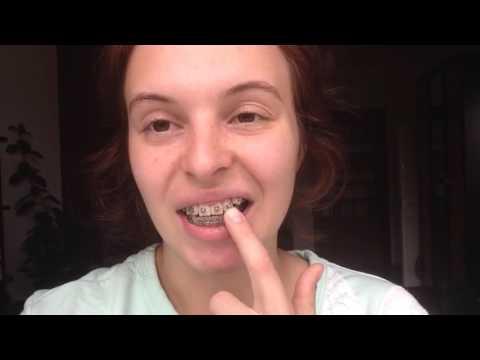 Как отбеливать жирную кожу лица