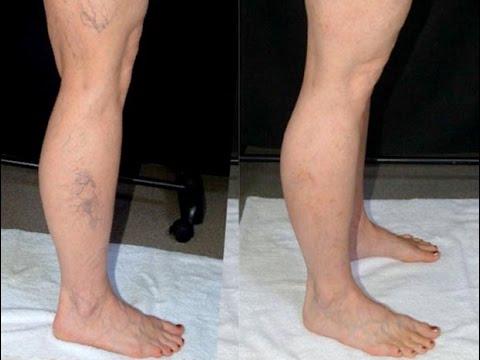 Come trattare gambe che la crema di vena