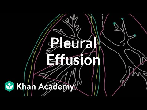 What is a pleural effusion? (video) | Khan Academy