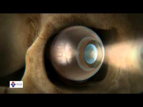 Viziune optică a ochiului