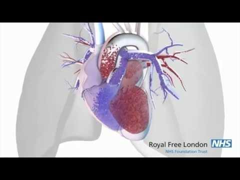 Diuretikai nuo hipertenzijos ir cukrinio diabeto