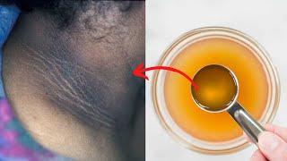 Apple cider vinegar (ACV) Trick to get rid of dark neck overnight in just 20 minutes