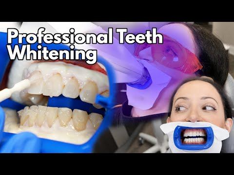 Teeth Whitening At The Dentist | Fastest Way To Whiten Your Teeth