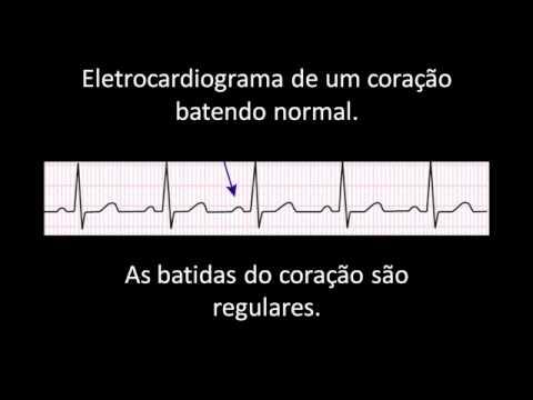Administração hipertensão sintomática