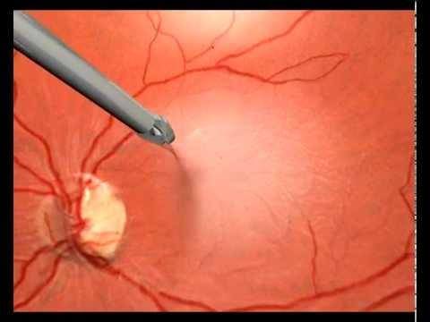 Макулодистрофия сетчатки глаза питание
