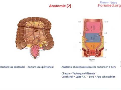 La varicosité dans lutérus à la grossesse les symptômes