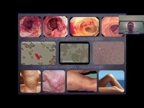 Последствия после прививки от гепатита а у взрослых