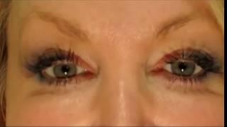 #1 Secret How to Have White, Whiter Eyes, Part 1. No more red bloodshot eyes video eye whitening