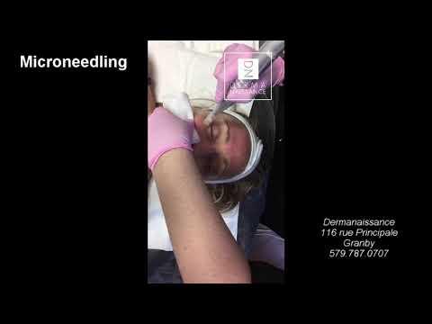Traitement de Microneedling chez Dermanaissance
