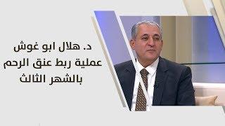 تحميل اغاني د. هلال ابو غوش - عملية ربط عنق الرحم بالشهر الثالث - طب وصحة MP3