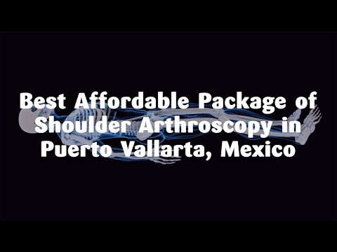 Best-Affordable-Package-of-Shoulder-Arthroscopy-in-Puerto-Vallarta-Mexico