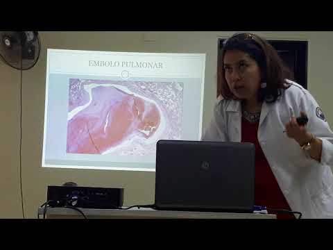 Gepatrombin a varicosity il prezzo