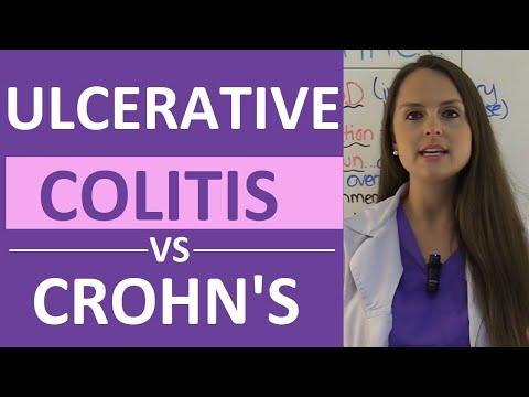 Video Crohn's Disease vs Ulcerative Colitis Nursing | Crohn's vs Colitis Chart Symptoms, Treatment