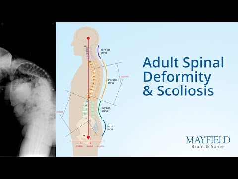 Esercizi per trattamento di scoliosis di video su YouTube