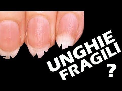 Il metodo efficace per liberarsi da un fungo di unghie