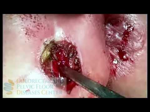 Come trattare la calcificazione della prostata