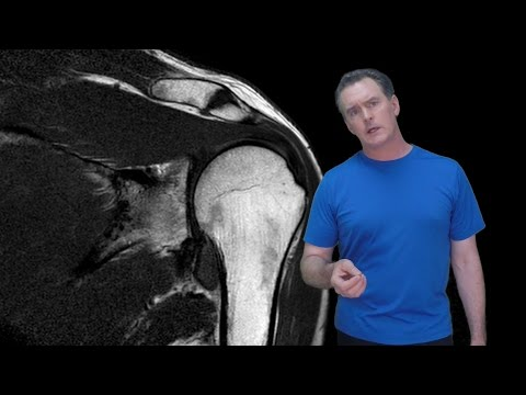 Ein Heilmittel für Erkrankungen der Gelenke