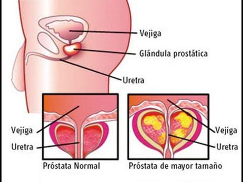 Tratamiento de la prostatitis más cálido