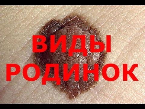 Отзывы о креме от пигментации сияние кожи