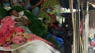 Seorang Ibu Idap Penyakit Aneh, Seluruh Tubuhnya Melepuh, Hanya Bisa Terbaring di Atas Daun Pisang