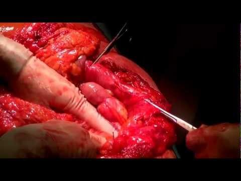 Vascolare della colonna vertebrale cervicale