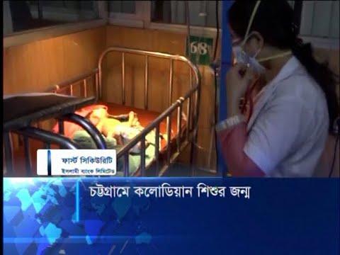 চট্টগ্রামে বিরল বৈশিষ্ট্য নিয়ে জন্ম নিয়েছে এক শিশু | ETV News