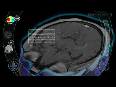 NEAAL Interface Example 2