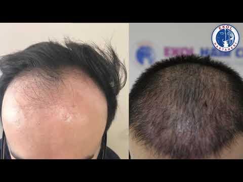 Fue Yöntemiyle Saç Ekimi - İzmir Ekol Hastanesi