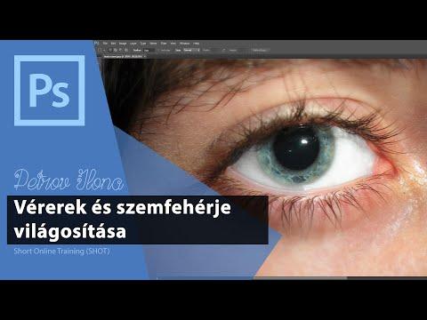A látás helyreállításának egyértelműsége