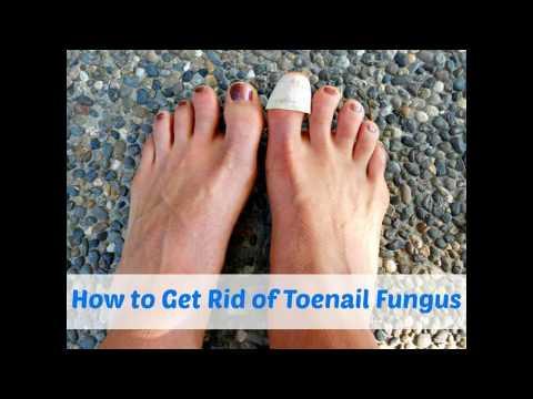 Come il fungo di unghia su una gamba uno stadio iniziale guarda