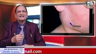 గవద బిళ్ళలు ఎందుకు వస్తాయి? Dr Samaram as Mee Intlo Meere Doctor (Part 3)