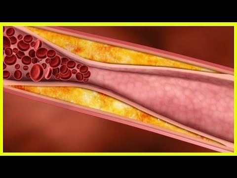 Ob Osteochondrose geben Tachykardie