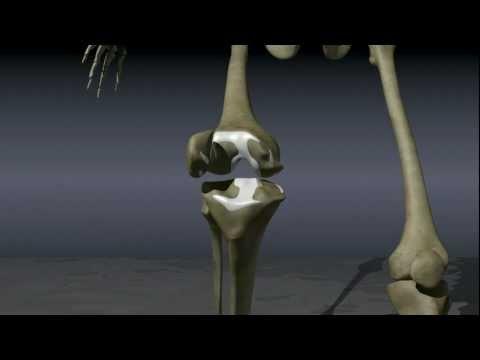 Osteochondrose der lumbalen Hernie