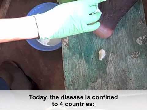 Enterobiosis a klinikán mikor