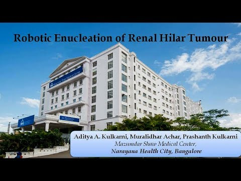 Robotic Enucleation of Renal Hilar Tumour
